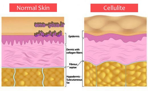 سلولیت چیست؟ عوامل ایجاد و راه های درمان آن